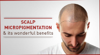Businesses of Any and All Types Affordable Scalp Micropigmentation in Vancouver BC